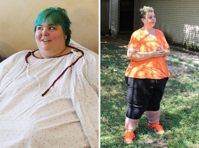 15 фотографій До і Після схуднення. Вони довели, що людина може все!