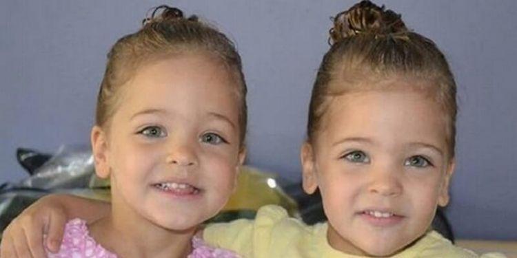 У 7 років їх назвали найкрасивішими близнюками в світі. Ось як вони виглядають зараз